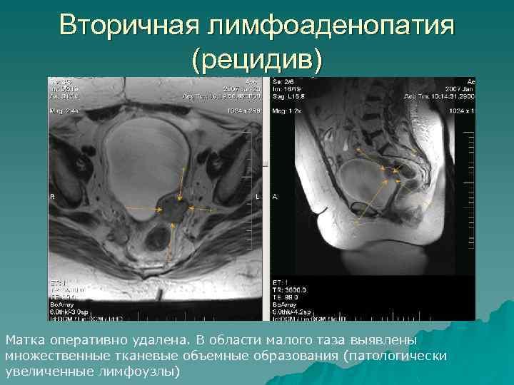 Вторичная лимфоаденопатия (рецидив) Матка оперативно удалена. В области малого таза выявлены множественные тканевые объемные