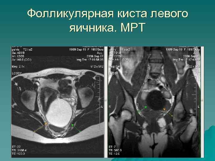 Фолликулярная киста левого яичника. МРТ