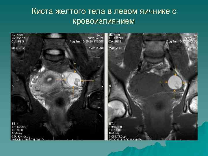 Киста желтого тела в левом яичнике с кровоизлиянием