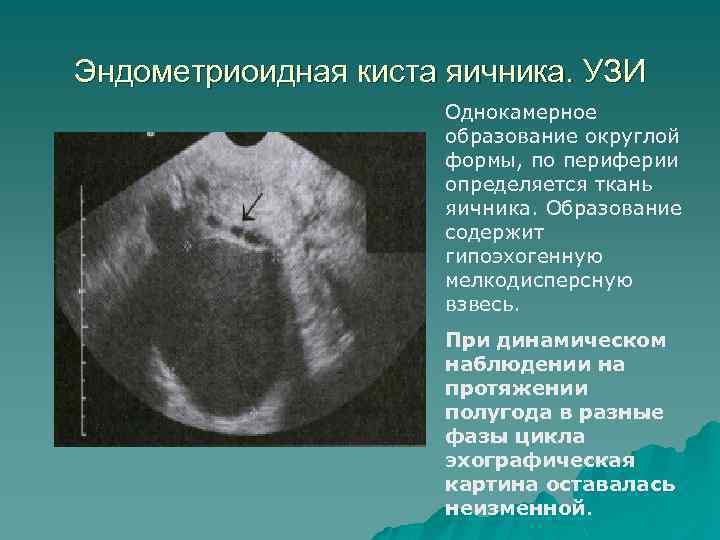 Эндометриоидная киста яичника. УЗИ Однокамерное образование округлой формы, по периферии определяется ткань яичника. Образование