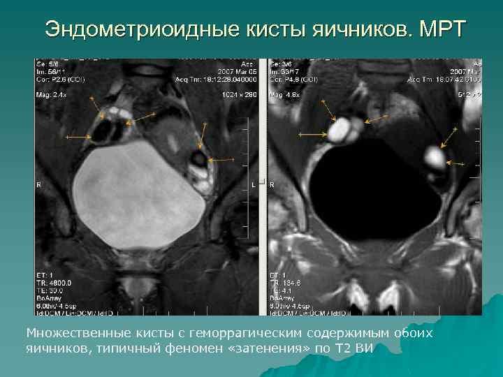 Эндометриоидные кисты яичников. МРТ Множественные кисты с геморрагическим содержимым обоих яичников, типичный феномен «затенения»