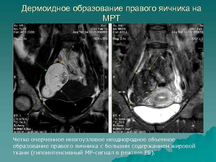 Дермоидное образование правого яичника на МРТ Четко очерченное многоузловое неоднородное объемное образование правого яичника