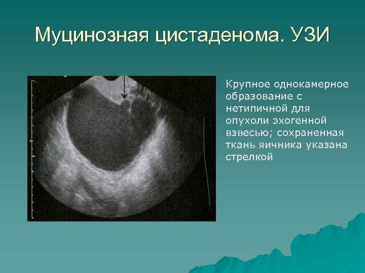 Муцинозная цистаденома. УЗИ Крупное однокамерное образование с нетипичной для опухоли эхогенной взвесью; сохраненная ткань