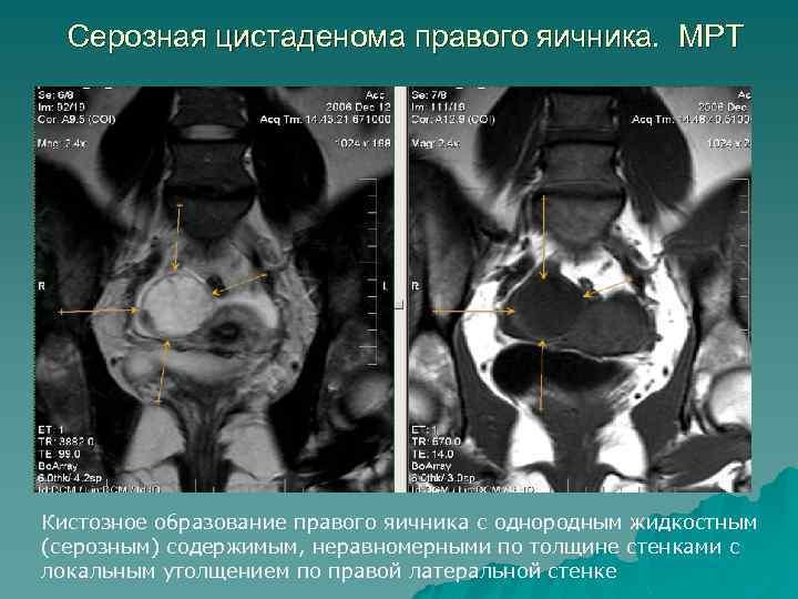 Серозная цистаденома правого яичника. МРТ Кистозное образование правого яичника с однородным жидкостным (серозным) содержимым,