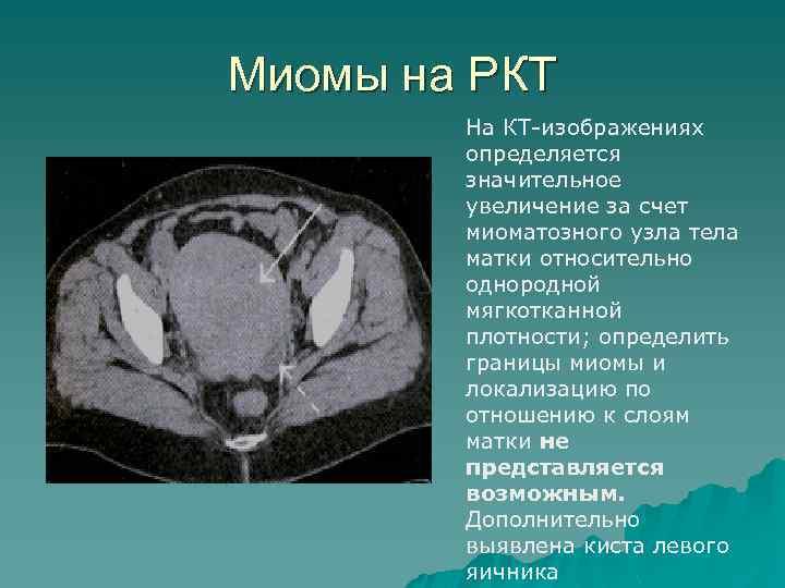Миомы на РКТ На КТ-изображениях определяется значительное увеличение за счет миоматозного узла тела матки