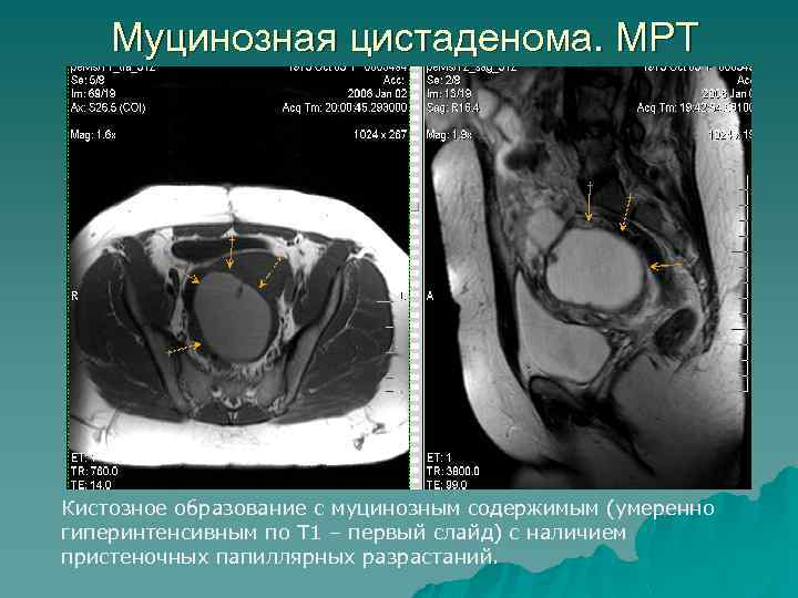 Муцинозная цистаденома. МРТ Кистозное образование с муцинозным содержимым (умеренно гиперинтенсивным по Т 1 –