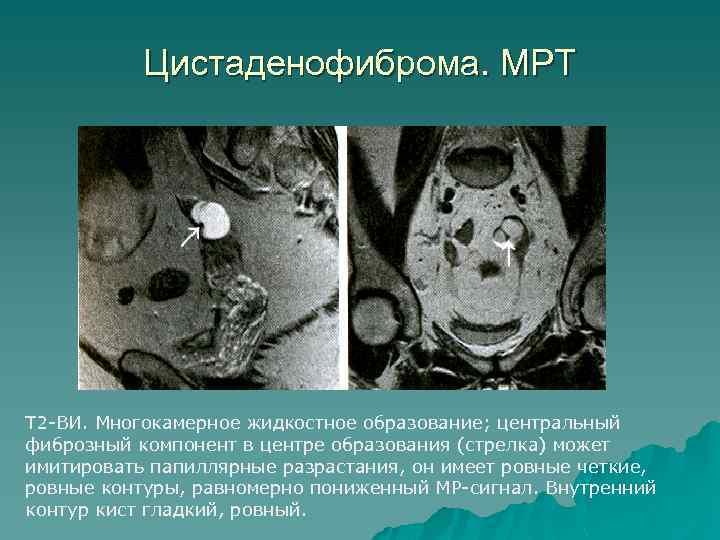 Цистаденофиброма. МРТ Т 2 -ВИ. Многокамерное жидкостное образование; центральный фиброзный компонент в центре образования