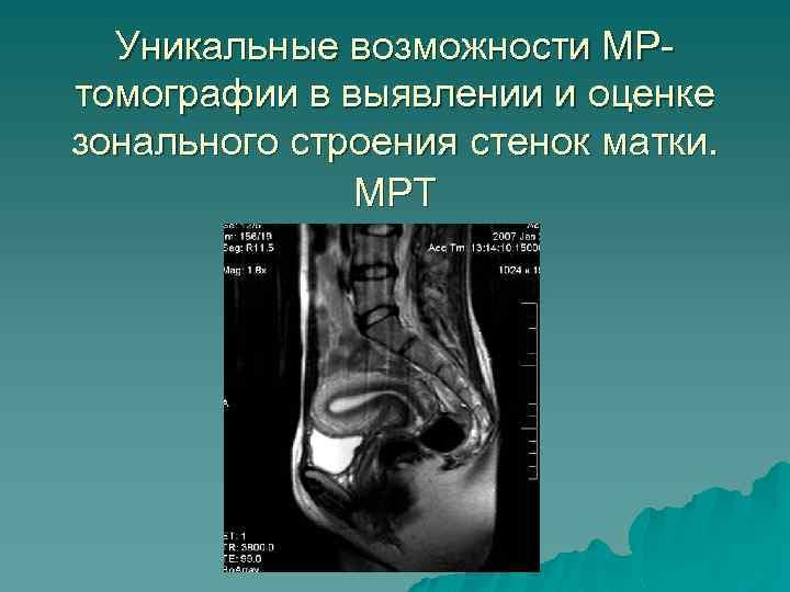 Уникальные возможности МРтомографии в выявлении и оценке зонального строения стенок матки. МРТ