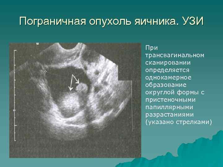 Пограничная опухоль яичника. УЗИ При трансвагинальном сканировании определяется однокамерное образование округлой формы с пристеночными