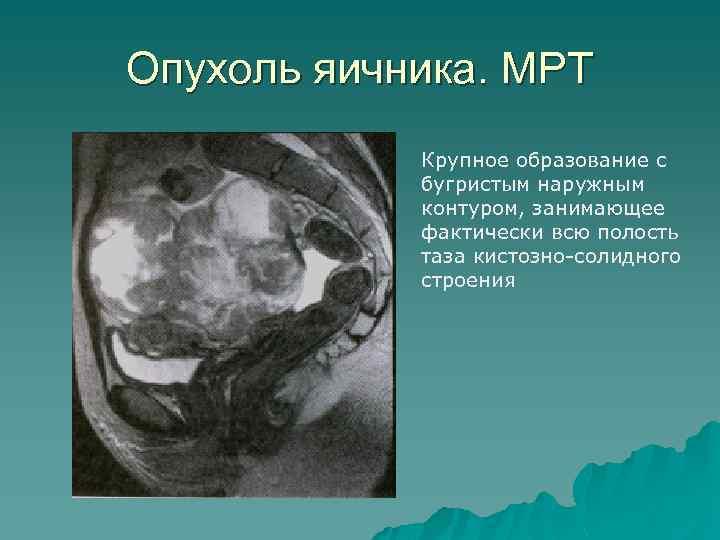 Опухоль яичника. МРТ Крупное образование с бугристым наружным контуром, занимающее фактически всю полость таза
