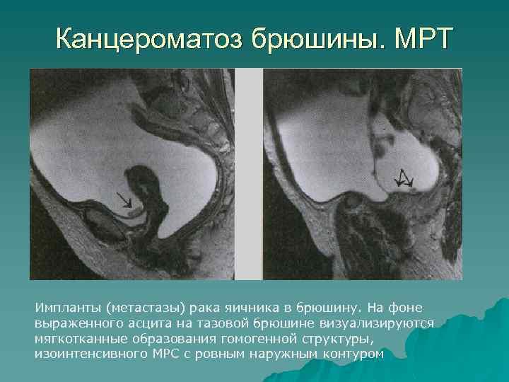 Канцероматоз брюшины. МРТ Импланты (метастазы) рака яичника в брюшину. На фоне выраженного асцита на