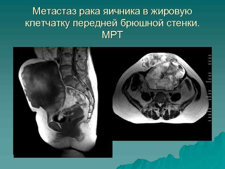 Метастаз рака яичника в жировую клетчатку передней брюшной стенки. МРТ