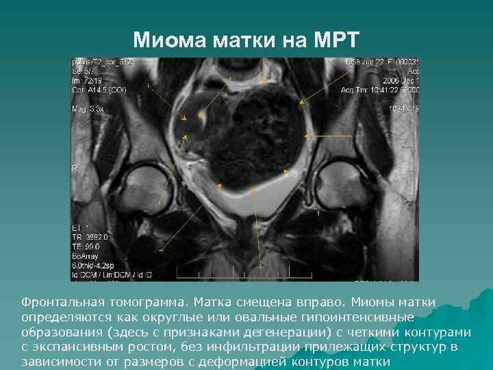 Миома матки на МРТ Фронтальная томограмма. Матка смещена вправо. Миомы матки определяются как округлые