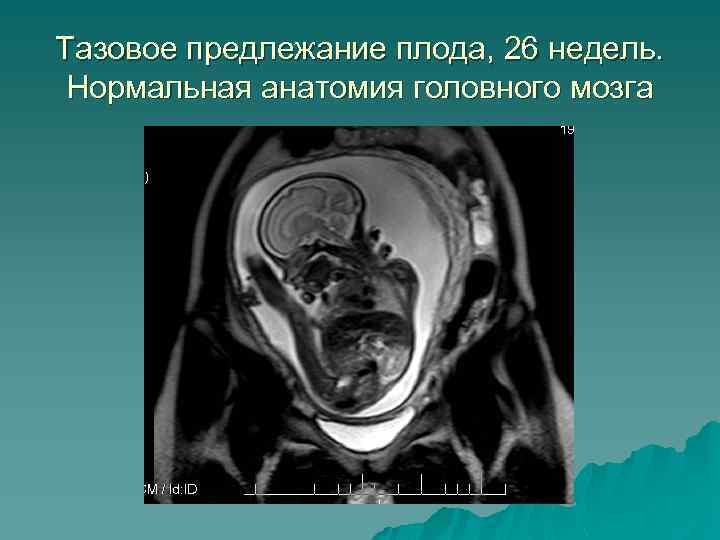 Тазовое предлежание плода, 26 недель. Нормальная анатомия головного мозга