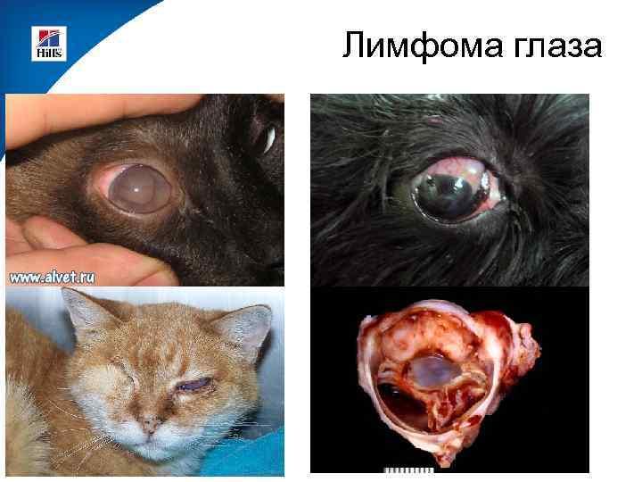 Лимфома глаза
