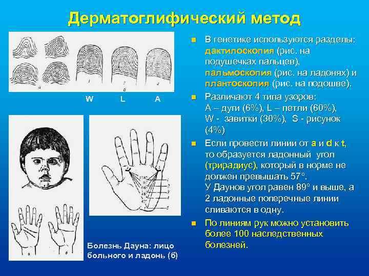 Дерматоглифический метод n W L A n n n Болезнь Дауна: лицо больного и