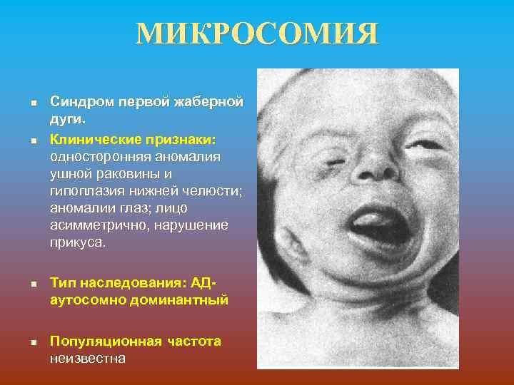 МИКРОСОМИЯ n n Синдром первой жаберной дуги. Клинические признаки: односторонняя аномалия ушной раковины и