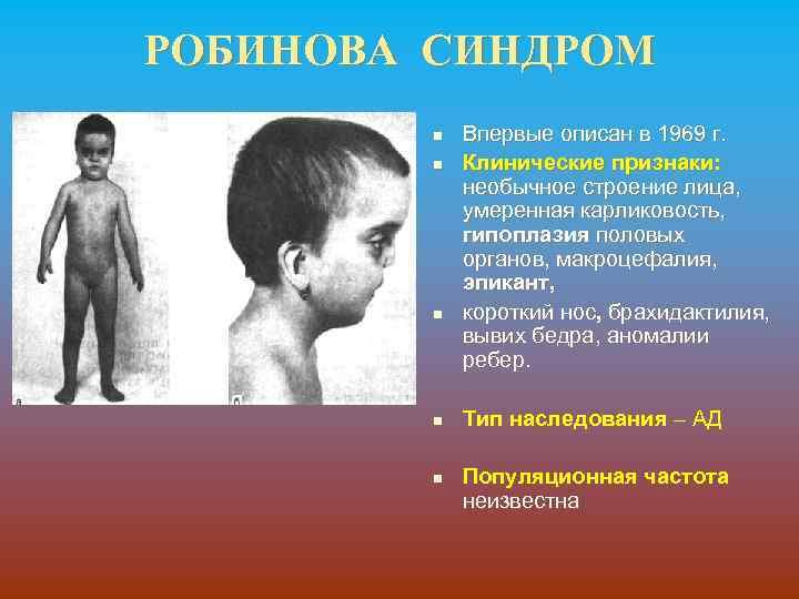 РОБИНОВА СИНДРОМ n n n Впервые описан в 1969 г. Клинические признаки: необычное строение