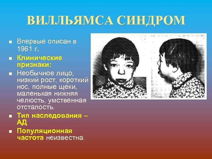 ВИЛЛЬЯМСА СИНДРОМ n n n Впервые описан в 1961 г. Клинические признаки: Необычное лицо,