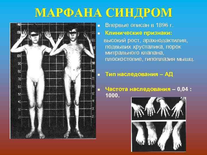 МАРФАНА СИНДРОМ Впервые описан в 1896 г. n Клинические признаки: высокий рост, арахнодактилия, подвывих