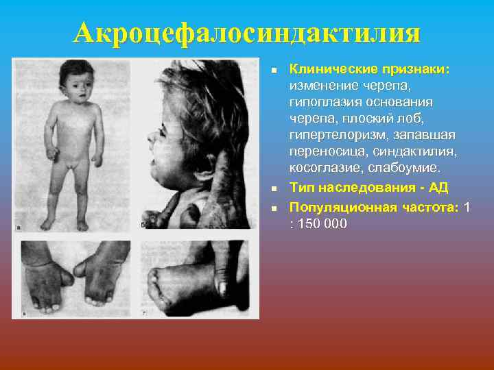 Акроцефалосиндактилия n n n Клинические признаки: изменение черепа, гипоплазия основания черепа, плоский лоб, гипертелоризм,