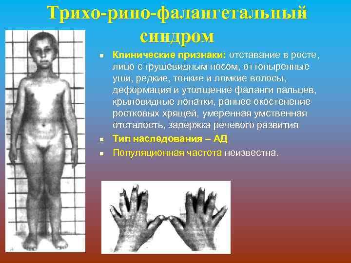 Трихо-рино-фалангетальный синдром n n n Клинические признаки: отставание в росте, лицо с грушевидным носом,