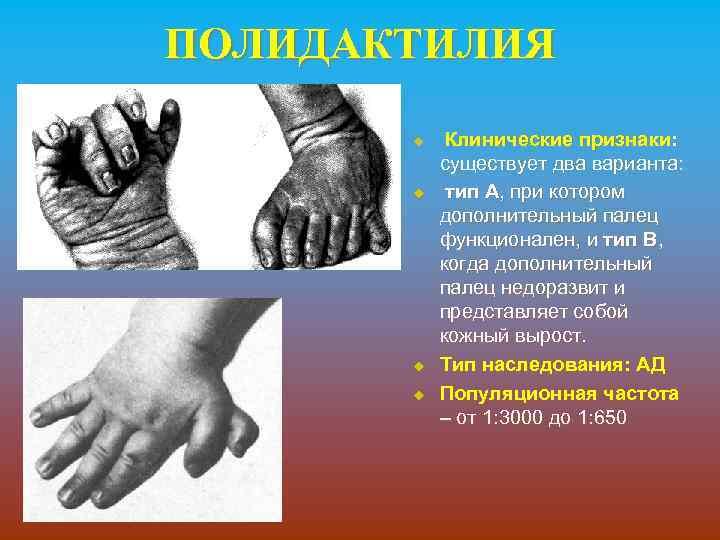 ПОЛИДАКТИЛИЯ u u Клинические признаки: существует два варианта: тип А, при котором дополнительный палец