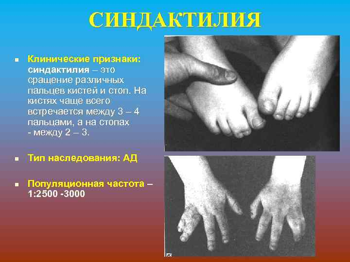 СИНДАКТИЛИЯ n n n Клинические признаки: синдактилия – это сращение различных пальцев кистей и