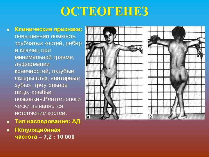 ОСТЕОГЕНЕЗ n n n Клинические признаки: повышенная ломкость трубчатых костей, ребер и ключиц при