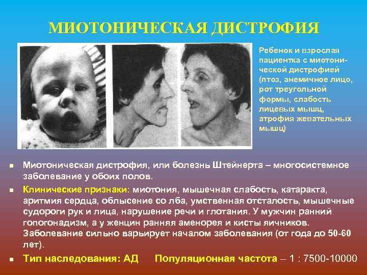 МИОТОНИЧЕСКАЯ ДИСТРОФИЯ Ребенок и взрослая пациентка с миотонической дистрофией (птоз, анемичное лицо, рот треугольной