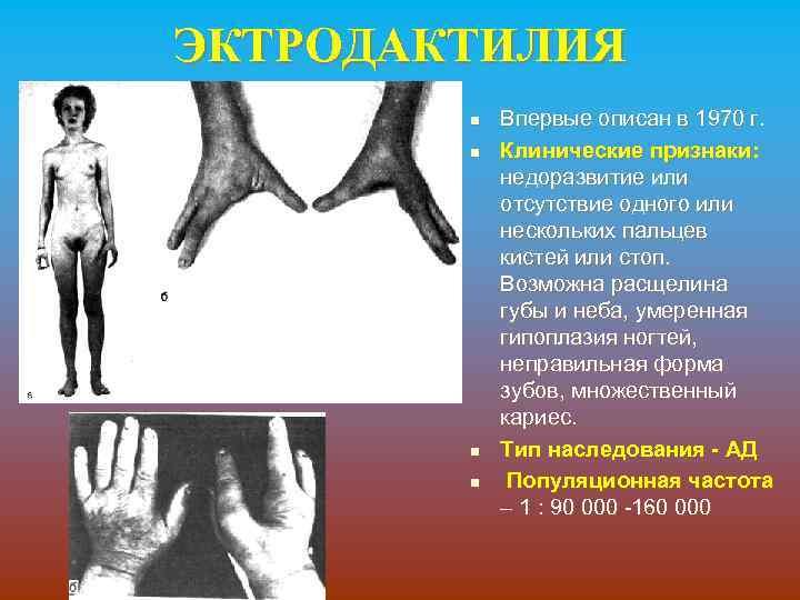 ЭКТРОДАКТИЛИЯ n n Впервые описан в 1970 г. Клинические признаки: недоразвитие или отсутствие одного