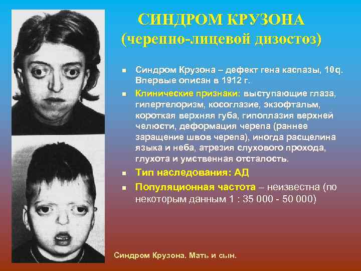 СИНДРОМ КРУЗОНА (черепно-лицевой дизостоз) n n Синдром Крузона – дефект гена каспазы, 10 q.
