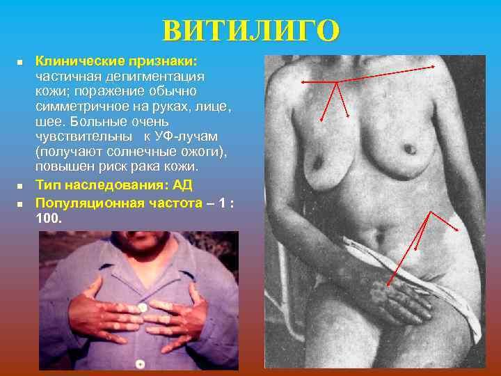 ВИТИЛИГО n n n Клинические признаки: частичная депигментация кожи; поражение обычно симметричное на руках,