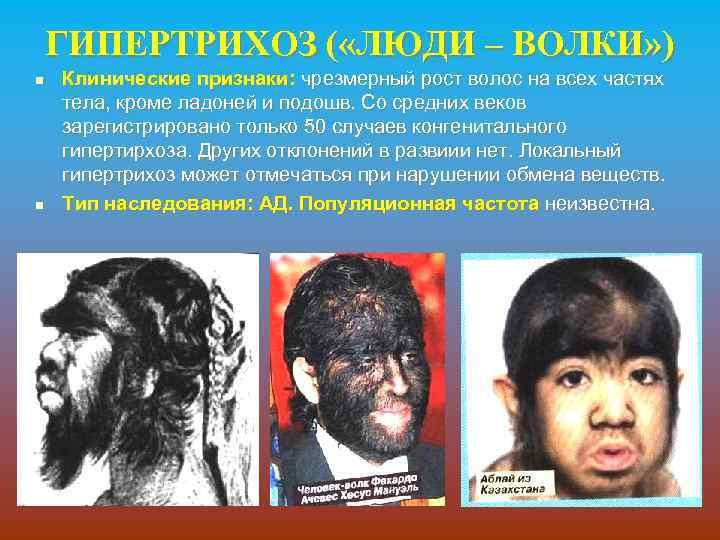 ГИПЕРТРИХОЗ ( «ЛЮДИ – ВОЛКИ» ) n n Клинические признаки: чрезмерный рост волос на