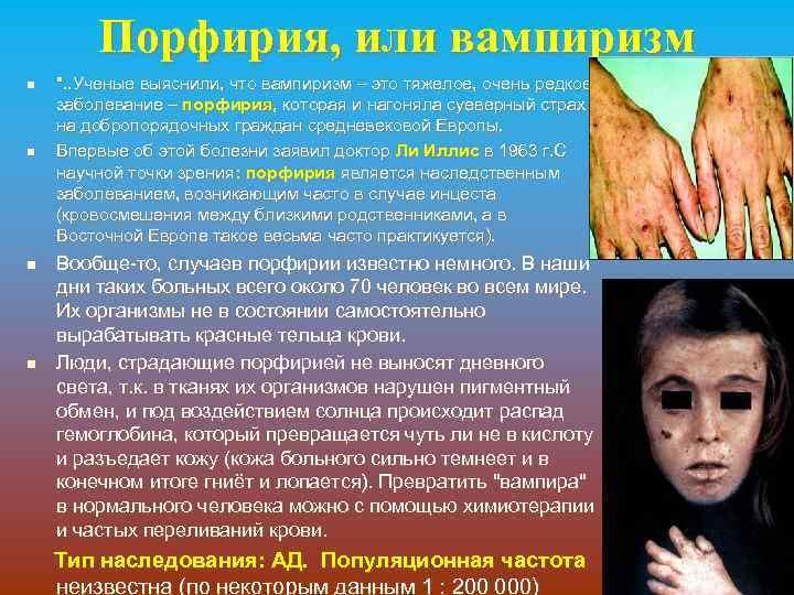 Порфирия, или вампиризм n n