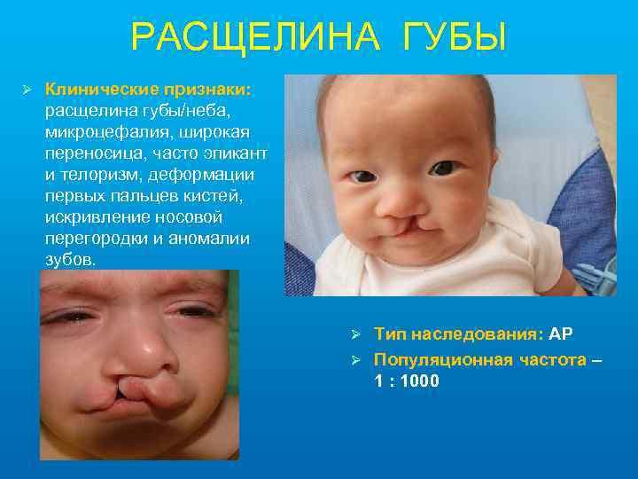 РАСЩЕЛИНА ГУБЫ Ø Клинические признаки: расщелина губы/неба, микроцефалия, широкая переносица, часто эпикант и телоризм,