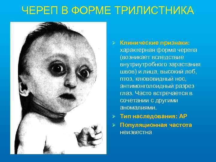 ЧЕРЕП В ФОРМЕ ТРИЛИСТНИКА Клинические признаки: характерная форма черепа (возникает вследствие внутриутробного зарастания швов)