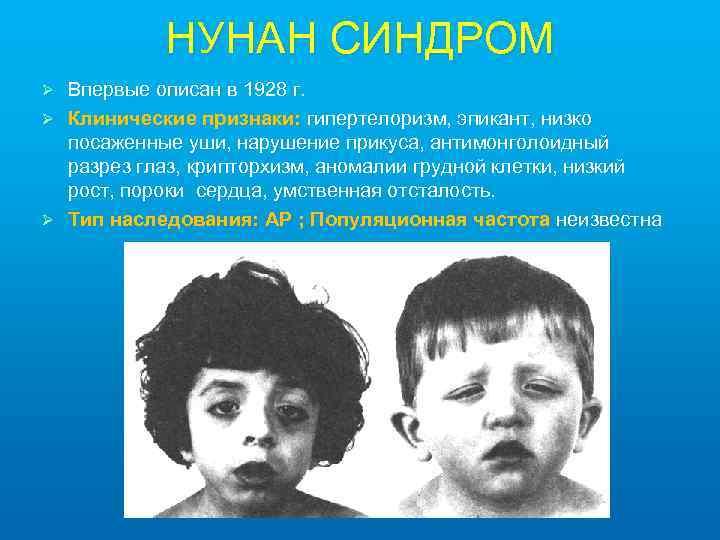 НУНАН СИНДРОМ Впервые описан в 1928 г. Ø Клинические признаки: гипертелоризм, эпикант, низко посаженные