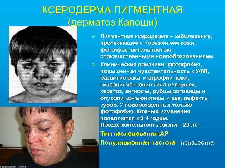 КСЕРОДЕРМА ПИГМЕНТНАЯ (дерматоз Капоши) Пигментная ксеродерма – заболевание, протекающее с поражением кожи, фоточувствительностью, злокачественными
