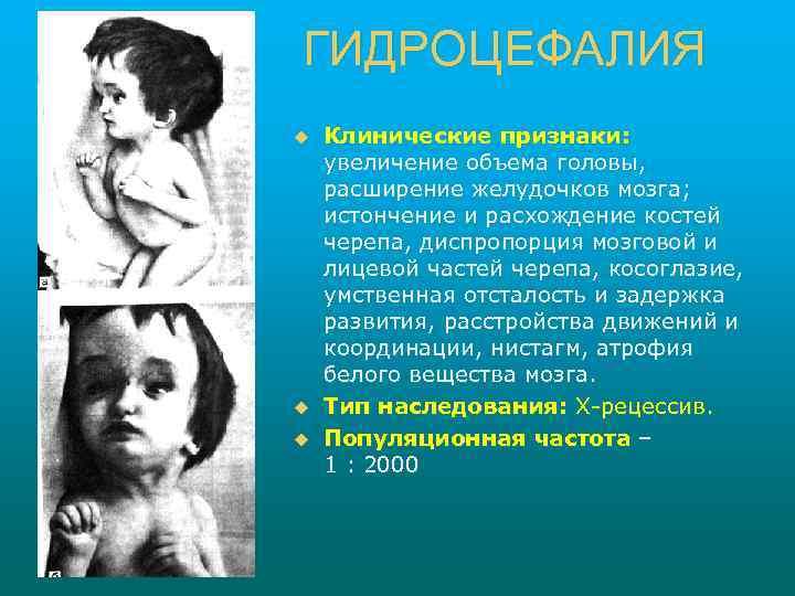 ГИДРОЦЕФАЛИЯ u u u Клинические признаки: увеличение объема головы, расширение желудочков мозга; истончение и