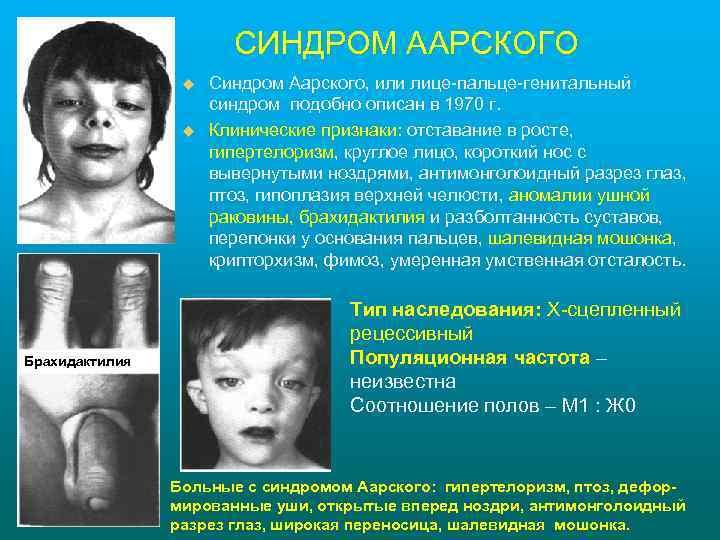 СИНДРОМ ААРСКОГО u u Брахидактилия Синдром Аарского, или лице-пальце-генитальный синдром подобно описан в 1970