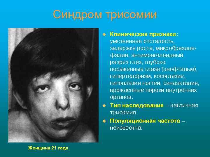 Синдром трисомии u u u Женщина 21 года Клинические признаки: умственная отсталость, задержка роста,
