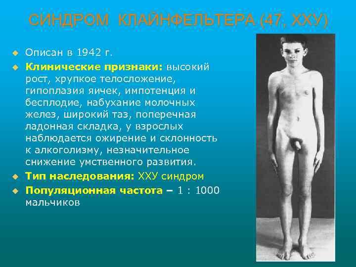 СИНДРОМ КЛАЙНФЕЛЬТЕРА (47, ХХУ) u u Описан в 1942 г. Клинические признаки: высокий рост,