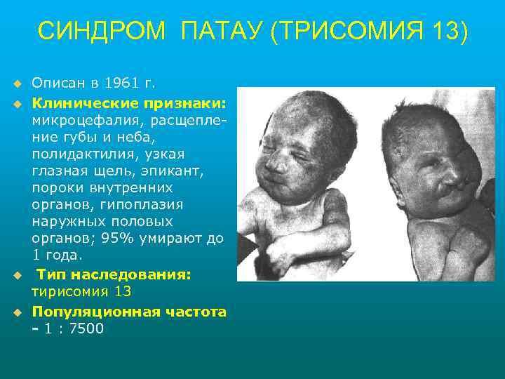 СИНДРОМ ПАТАУ (ТРИСОМИЯ 13) u u Описан в 1961 г. Клинические признаки: микроцефалия, расщепление