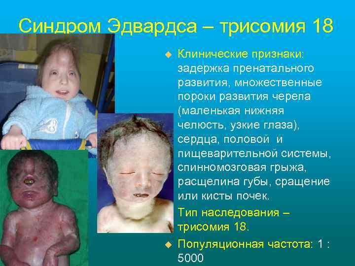 Синдром Эдвардса – трисомия 18 u u u Клинические признаки: задержка пренатального развития, множественные