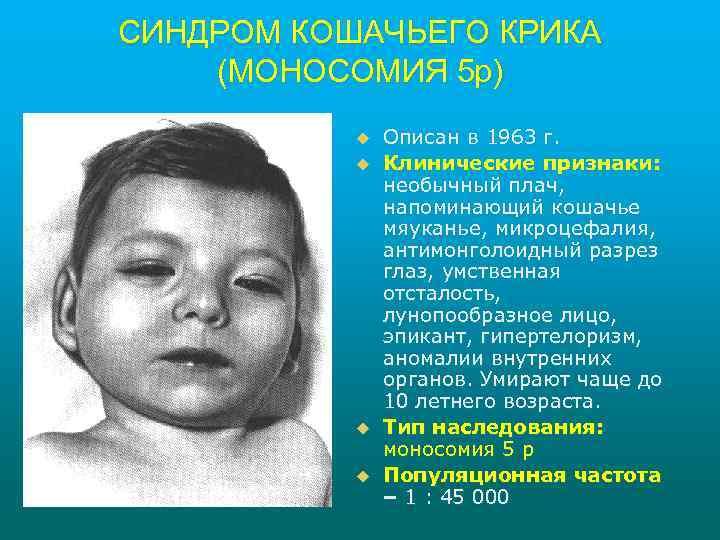 СИНДРОМ КОШАЧЬЕГО КРИКА (МОНОСОМИЯ 5 р) u u Описан в 1963 г. Клинические признаки: