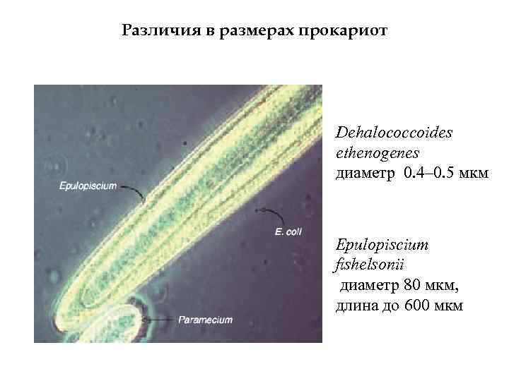 Различия в размерах прокариот Dehalococcoides ethenogenes диаметр 0. 4– 0. 5 мкм Epulopiscium fishelsonii