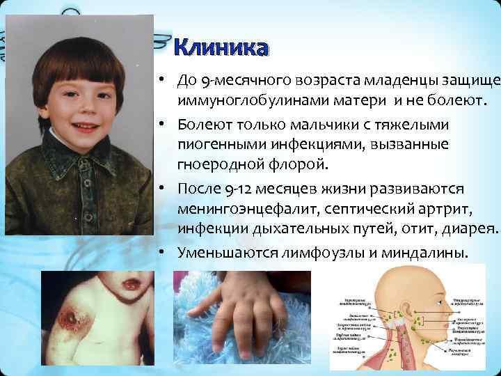Клиника • До 9 -месячного возраста младенцы защище иммуноглобулинами матери и не болеют. •