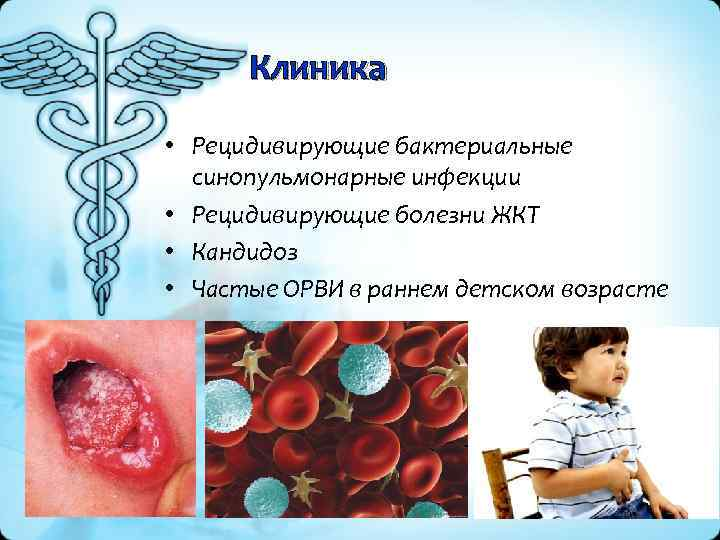 Клиника • Рецидивирующие бактериальные синопульмонарные инфекции • Рецидивирующие болезни ЖКТ • Кандидоз • Частые