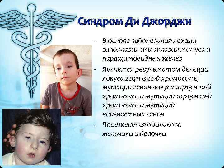 Синдром Ди Джорджи - В основе заболевания лежит гипоплазия или аплазия тимуса и паращитовидных
